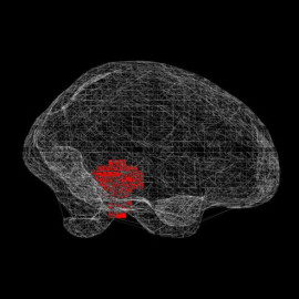 fMRI brainscan online visualization: Pearson Lab
